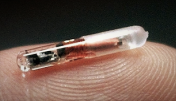 U.S. Company Implanting Microchips In Employees